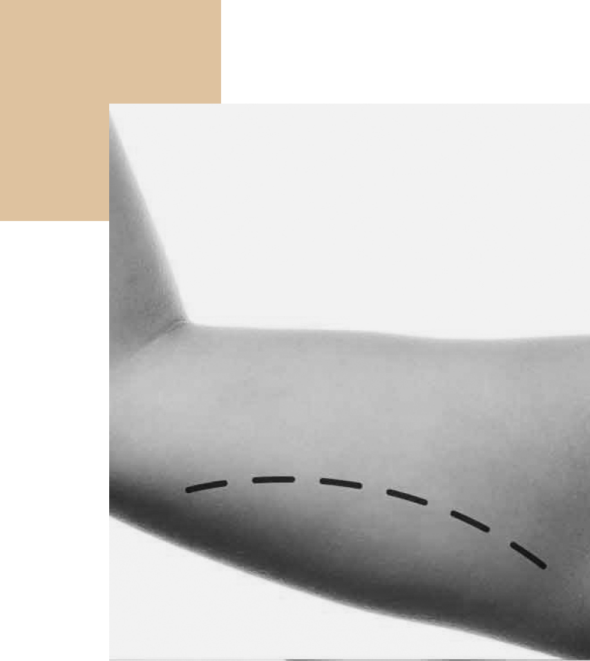drmeoli-lifting-braccia-lugano