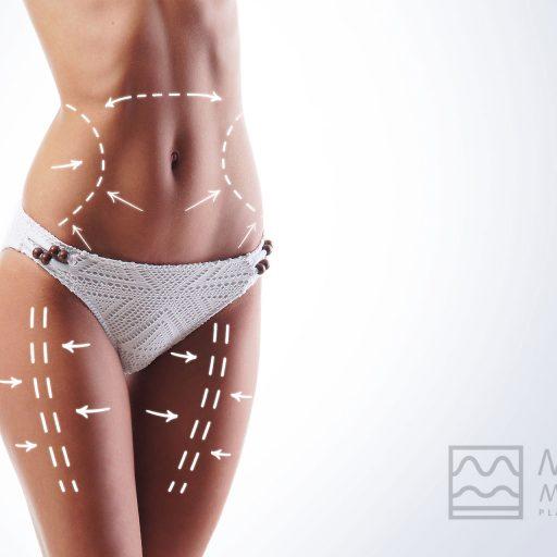 Dr.Martino-Meoli-liposuzione-falsi-miti
