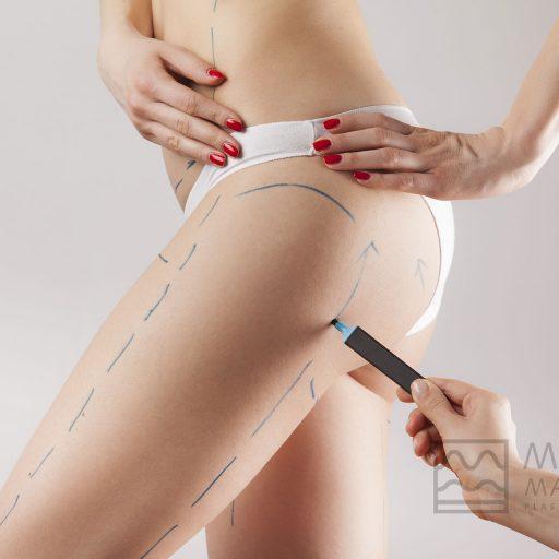Dr.Martino-Meoli-postoperatorio-liposuzione